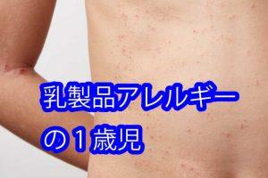 乳製品アレルギーの1歳児
