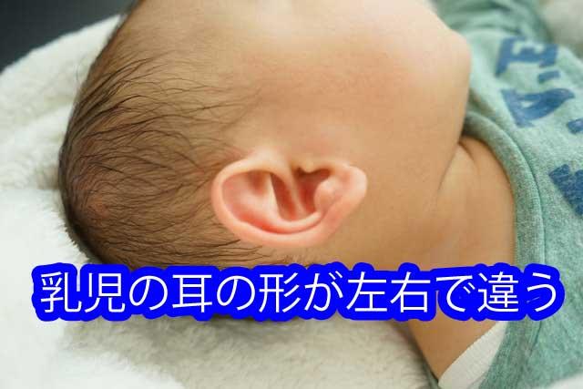 乳児の耳の形が左右で違う1