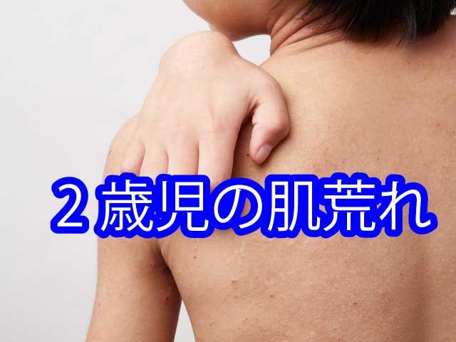2歳児の肌荒れ