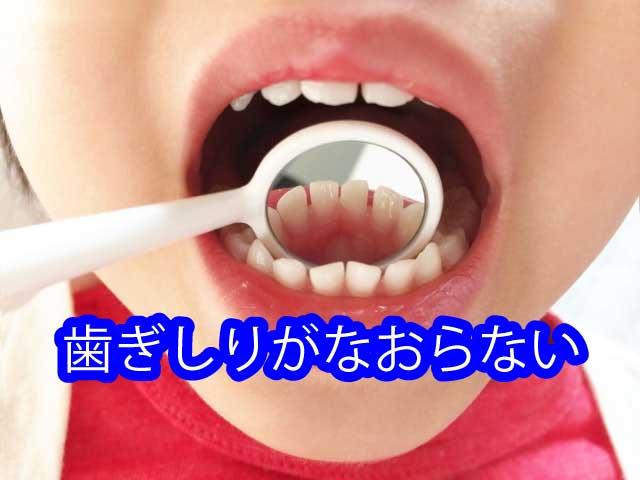 歯ぎしりがなおらない